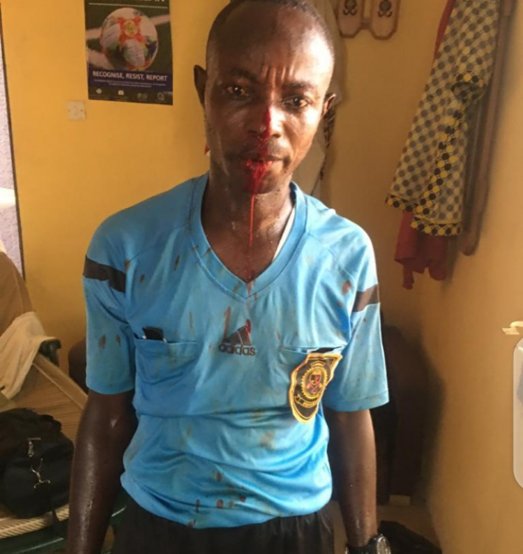 Referees beaten mercilessly by Mighty Royals fans in Division One League  game [+VIDEO & PICTURES] - Footy Dreams